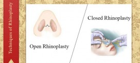 techniques of rhinoplasty